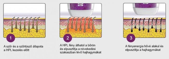 Silk'n IPL-HPL technológia működése